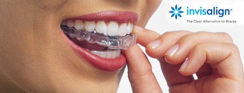 Invisalign Long Beach, CA