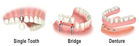 Dental Implant Dentures, Overdentures, Dental Implants Bixby Knolls, Long Beach, CA