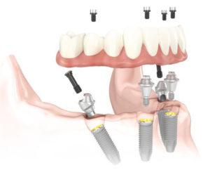 All on 4 Dental Implants Long Beach