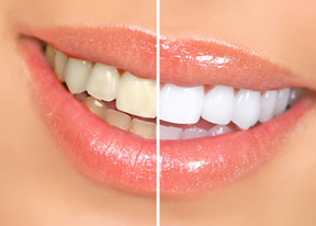 Teeth Whitening in Long Beach